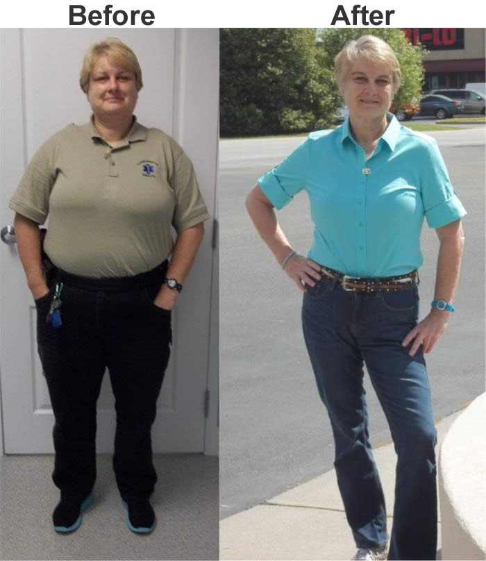 Weight Loss Success Stories Inspiring Before & After Pics.